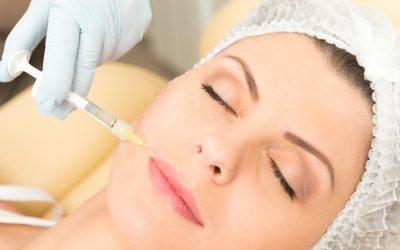 Lifting facial sin cirugía: Radiesse