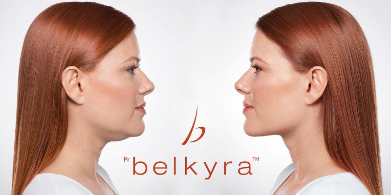 Belkyra, nou producte d'avantguarda per a la reducció de papada